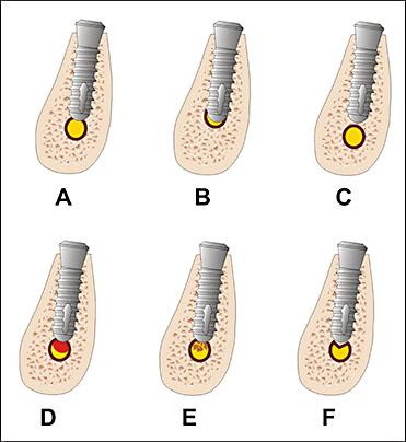 JOMR | Injury of the Inferior Alveolar Nerve during Implant