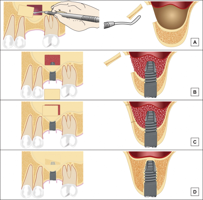 Sinus Floor Elevation With Osteotomes : Jomr maxillary sinus floor augmentation a review of